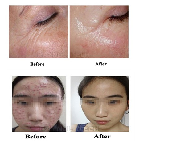 Microneedle Fractional RF Face & Skin Treatment