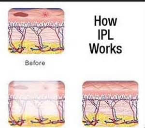IPL intense pulsed light hair removal / tattoo removal equipment