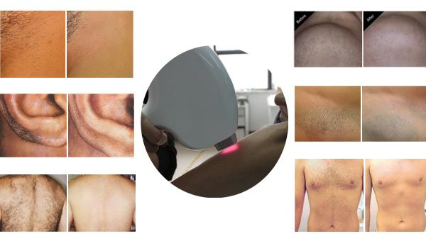 Perfect Result 808 IPL Laser Machine for Fast Laser Hair Removal